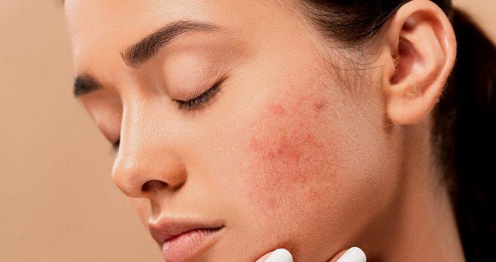 Tipy a rady proti akné - ako sa ho zbaviť? (Foto: pixabay.com)